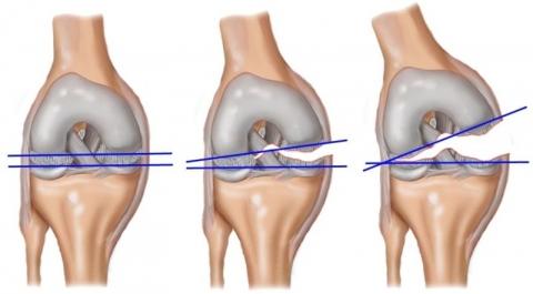 Разрыв мениски коленного сустава картинки болят суставы ног в тридцать что это
